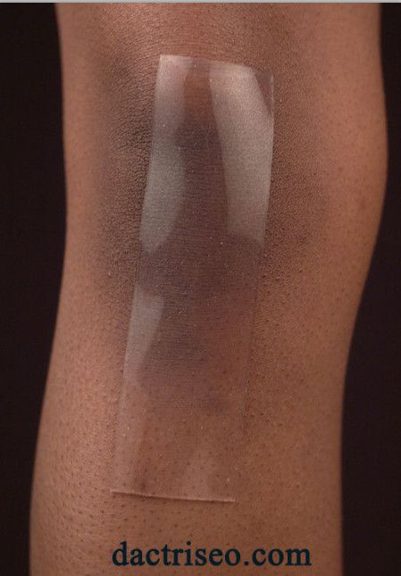 Silicone Scar Fx trị sẹo lồi phẫu thuật
