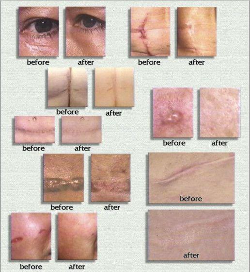 Công dụng của kem trị sẹo Scar Rejuvasil